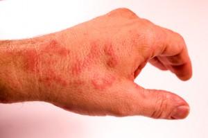 Artikelgebend sind Behandlungsmöglichkeiten von Neurodermitis.