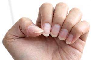 Artikelgebend sind Tipps gegen brüchige Fingernägel.